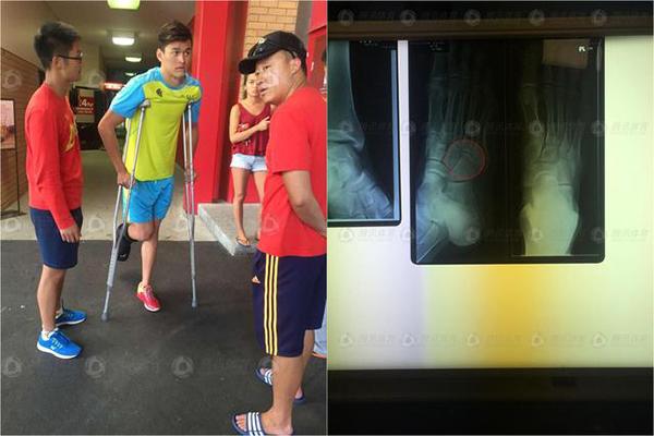 赛前受伤的孙杨仍坚持比赛.jpg